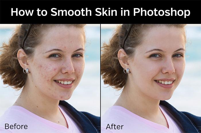 smooth-skin